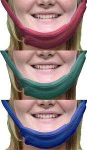 ProtectaChin® & Face Guards