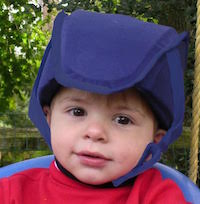 Plum's® ProtectaCap+Plus® Advanced Fall Protection Helmets for Kids